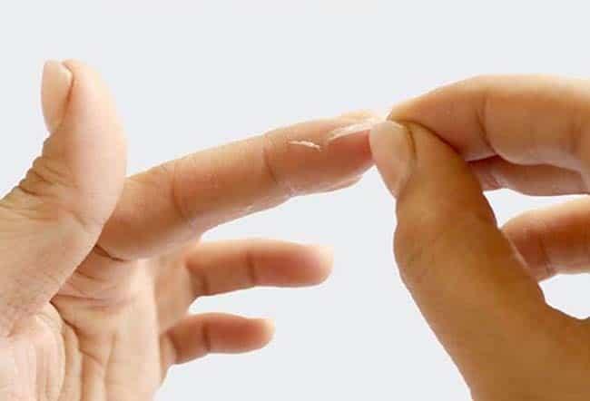 Механическое удаление герметика с рук может быть болезненно