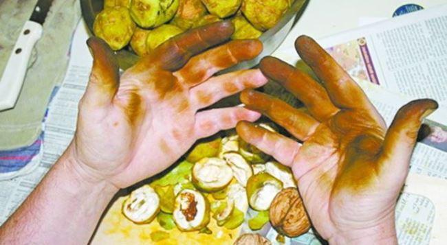 Руки после чистки зеленых орехов